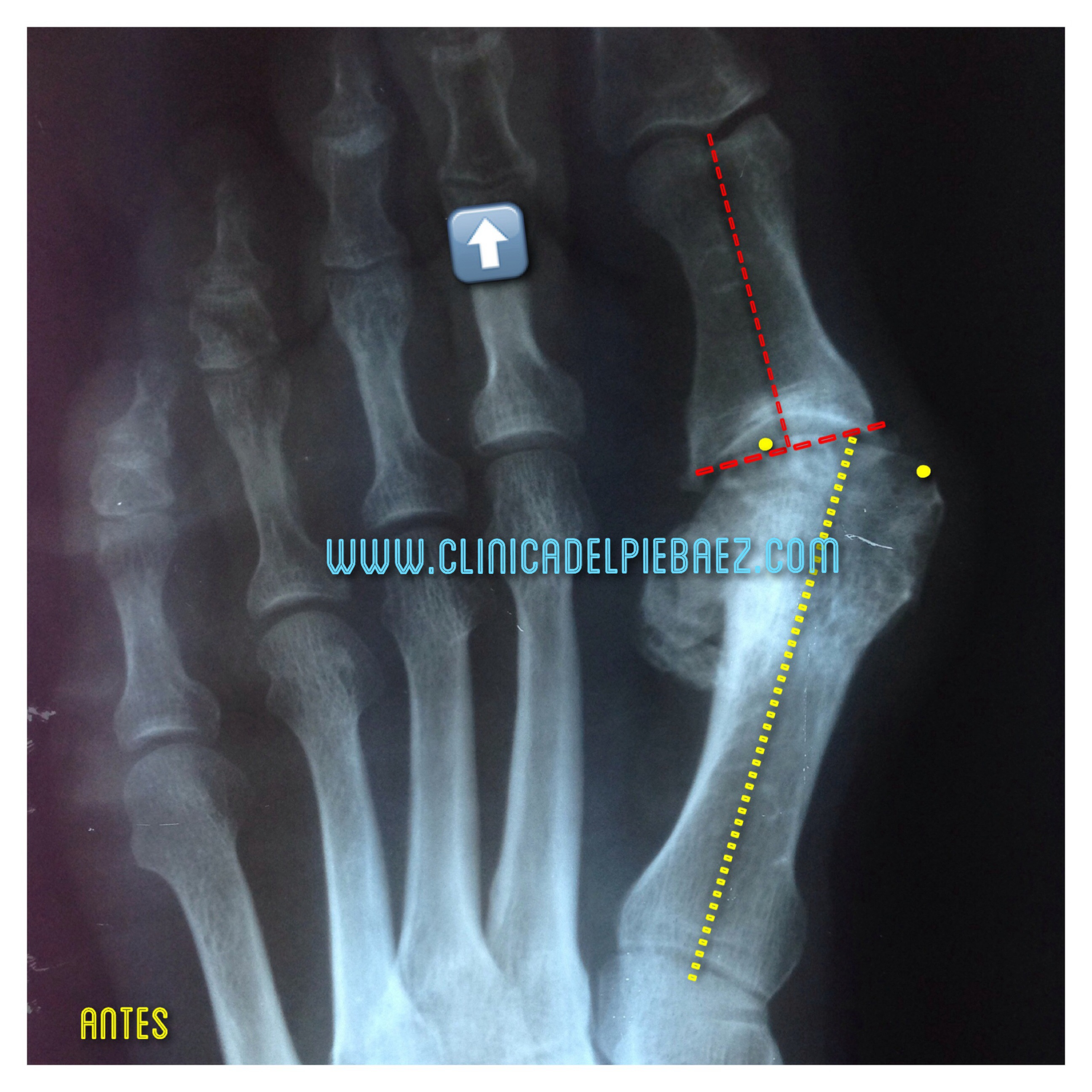 Cirugía HAV (juanete). Procedimiento Austin y artrodesis II dedo.