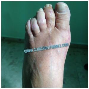 1 mes postquirúrgico. Uso de zapato deportivo